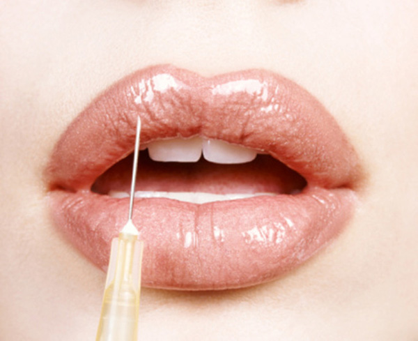 Close-up of a Woman's Lips Receiving Cosmetic Surgery from a Syringe